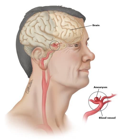 Aneurismas cerebrais são dilatações nos vasos do cérebro. Podem crescre e sangrar.